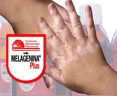 Melagenina 1